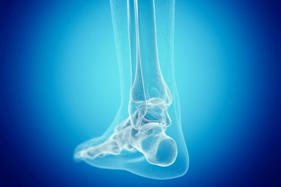 Foot X-ray - Neil King Physical Therapy